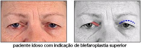 blefaroplastia-fotos